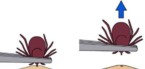 Image showing proper removal of a tick with a tweezer